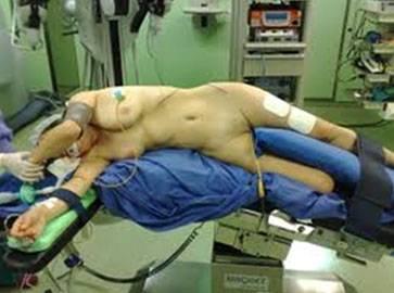 Трансперитонеальная лапароскопическая нефропексия