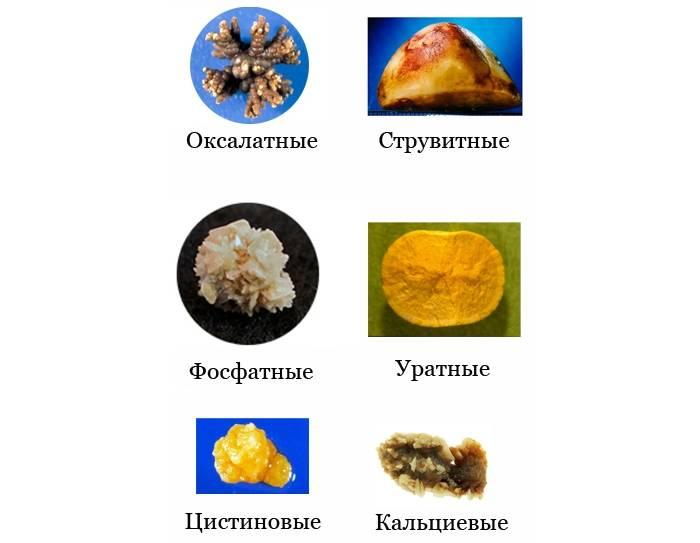 Камни в почках у женщин: симптомы, виды камней