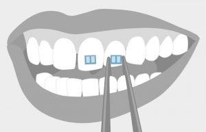 Роль брекетов в ортодонтии