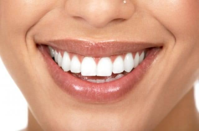 Отбеливание зубов в домашних условиях: основные правила